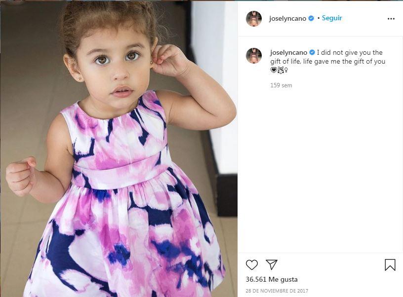 Difunden fotos de Joselyn Cano antes de cirugías tras su muerte